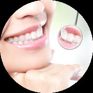 Instant Orthodontics