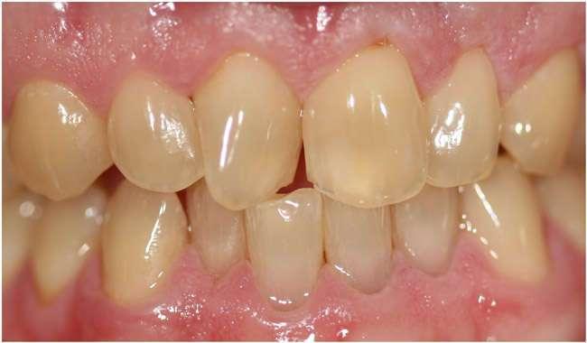 Before Teeth Straightening